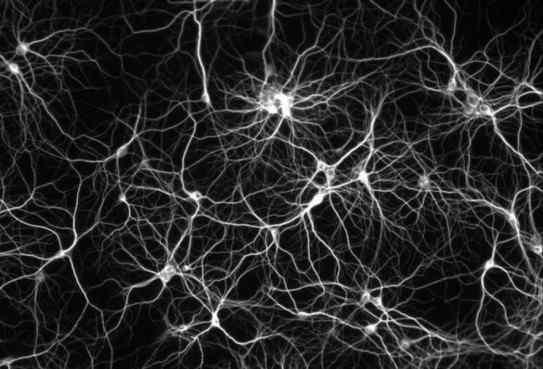 white cobwebs, black background